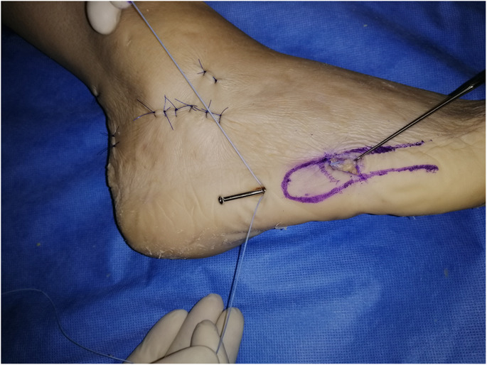 a foot showing Fifth Metatarsal Fracture Surgery process