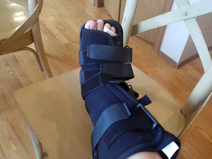 best shoes for broken foot and ankle, best shoes for broken foot recovery orthopedic shoes for broken ankle